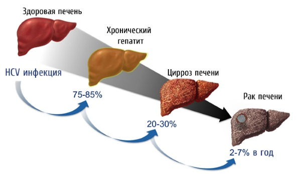 При заболевании гепатитом С происходит фиброзное перерождение печени