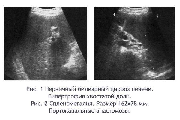 Первичный цирроз на УЗИ (Рис. 1)