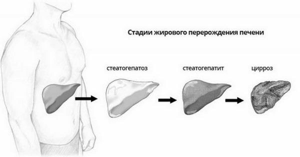 Стадии жирового перерождения печени