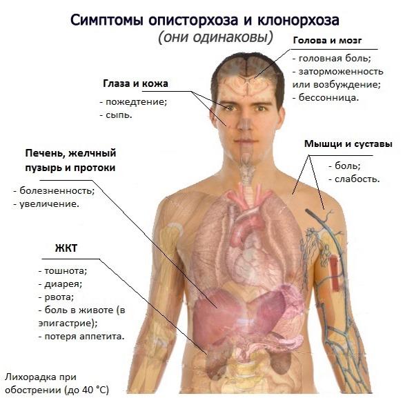 Описторхоз как можно заразиться