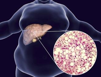 Гепатоз отличается от стеатоза более запущенной формой
