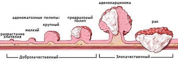 Стадии малигнизации полипа