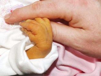 Многие виды желтухи встречаются у новорожденных