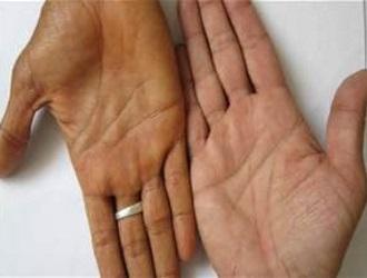 Изменение цвета кожи, а именно появление желтизны или коричневого оттенка, может быть симптомом данного заболевания