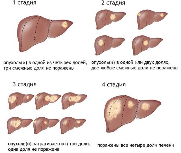 Существуют различные стадии развития заболевания