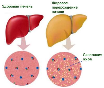 Нарастание жировых отложений на печени является показателем развития гепатоза