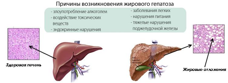 Опасен ли жировой гепатоз печени