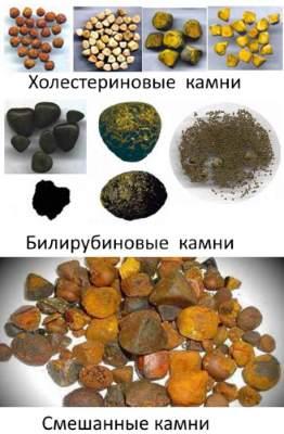 Камни в желчном пузыре: симптомы, признаки, виды конкрементов. Как ...