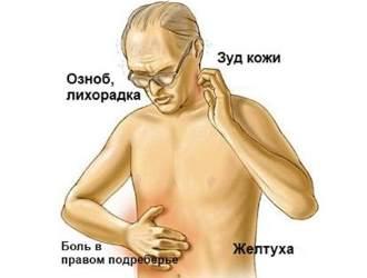 При застое желчи могут возникать такие симптомы