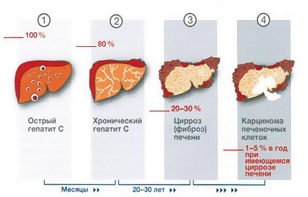 Если не бороться с гепатитом, то возможно такое ухудшение состояния печени