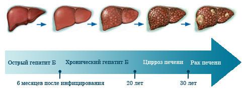 Следующим образом гепатит может перерасти в рак печени