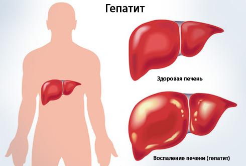 Препарат помогает справиться с вирусными гепатитами. Пораженная печень выглядит так