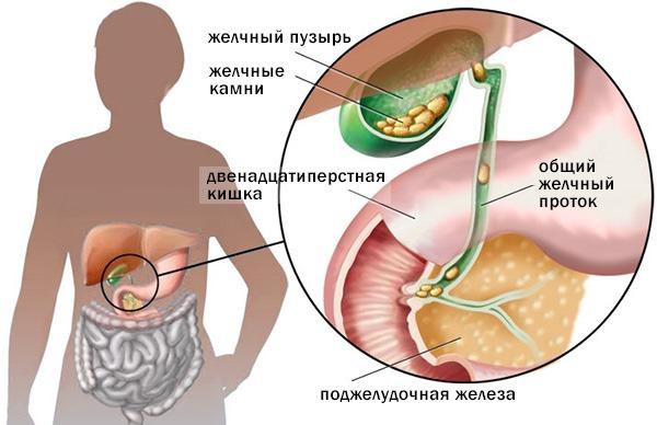 Препарат может применяться при холецистите. На изображении показано движение камней при этом недуге