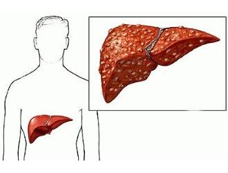 Препарат популярен при лечении вирусных поражений печени